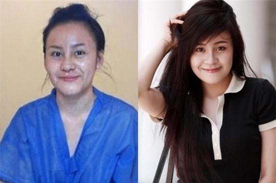Hot girl Việt sưng phù mặt sau nghi án dao kéo  - Ảnh 6