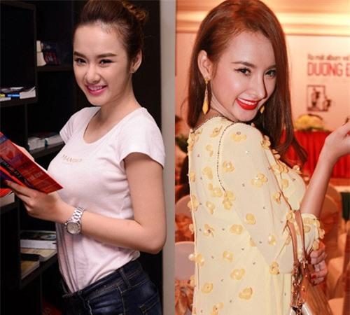 Hot girl Việt sưng phù mặt sau nghi án dao kéo  - Ảnh 7