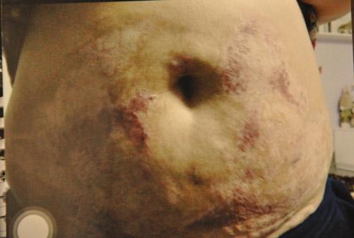 Phẫu thuật thẩm mỹ và những hình ảnh biến chứng kinh rợn - Ảnh 2