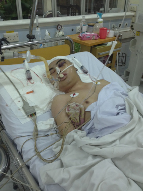 Điều tra vụ CSGT Hòa Bình gây chấn thương nặng cho nam thanh niên - Ảnh 1
