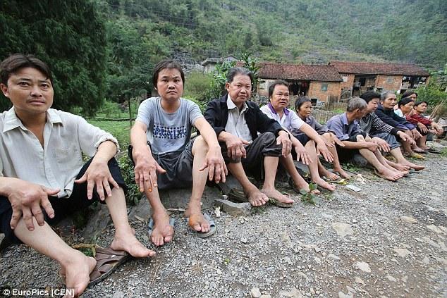 Cả ngôi làng hoang mang vì mắc bệnh lạ - Ảnh 1