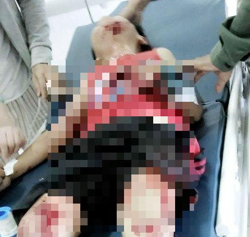 Lựu đạn nhựa phát nổ, hai em nhỏ bị thương nặng - Ảnh 2