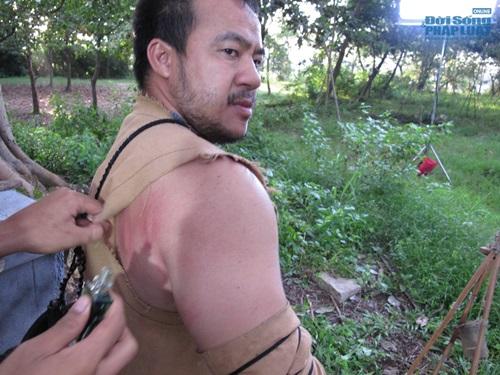 """Hiếu Hiền bị thương tích đầy mình khi đóng phim """"Thạch sanh"""" - Ảnh 2"""