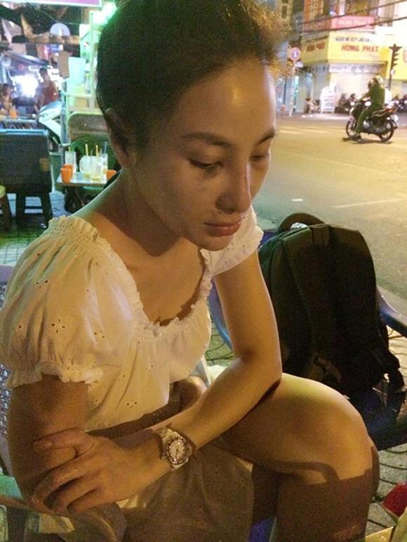 HH thế giới người Việt bị bạn trai đánh bầm dập? - Ảnh 2