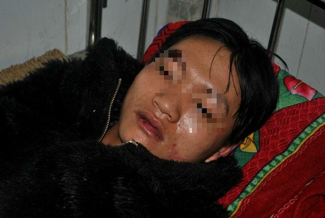 Bị đánh hội đồng vì nghi trộm chó, 2 thanh niên giả chết để sống sót - Ảnh 1