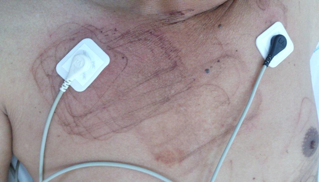 Khánh Hòa: Cứu sống bệnh nhân đã ngưng tim - Ảnh 1