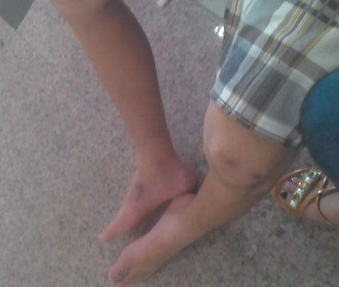 Mẹ tố công an đánh con trai bại liệt hai chân - Ảnh 2
