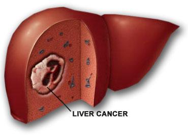 Những điều cần biết để phòng bệnh ung thư gan - Ảnh 1