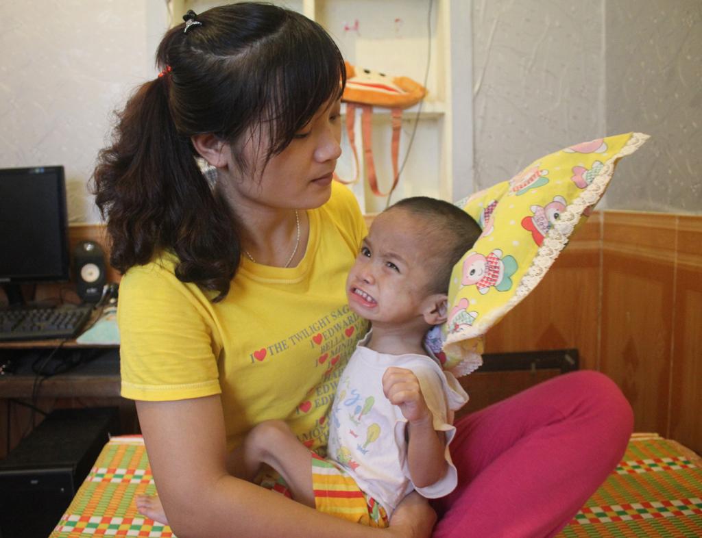 Mong manh sự sống của bé 2 tuổi với 3 lần mổ não - Ảnh 3