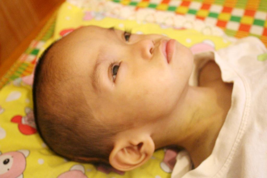 Mong manh sự sống của bé 2 tuổi với 3 lần mổ não - Ảnh 5