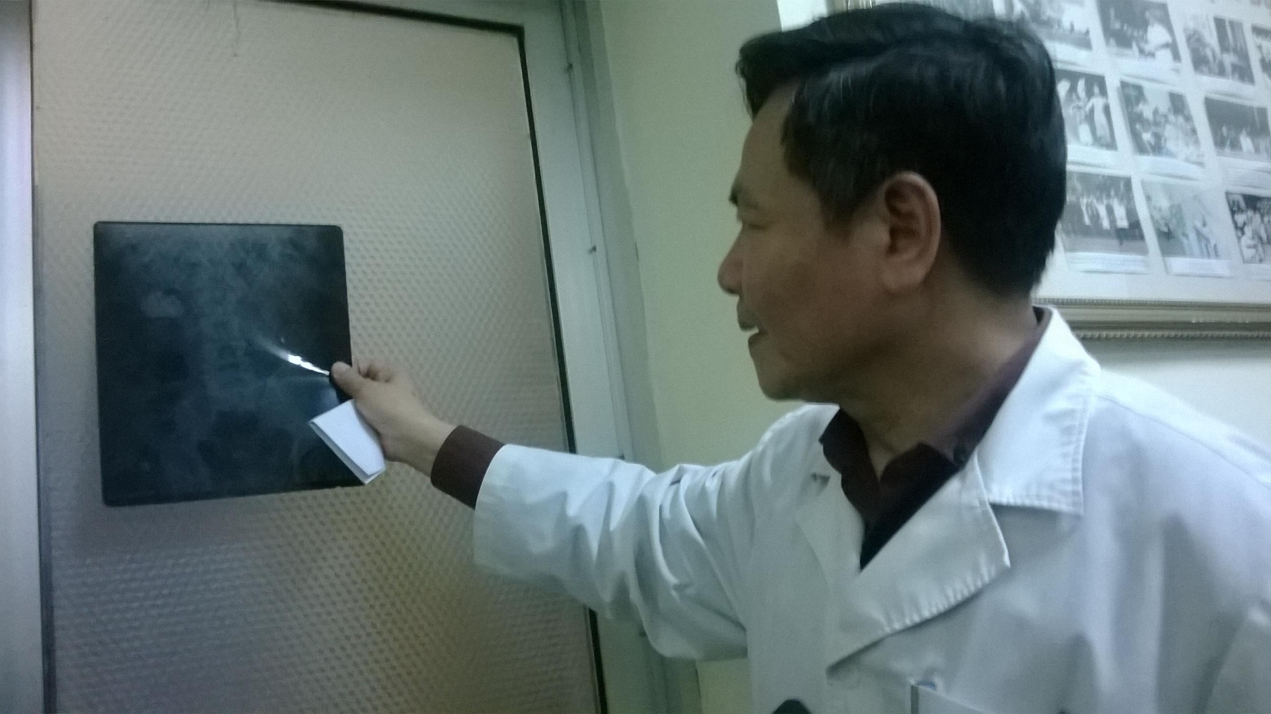 Sau việc bệnh nhân tử vong: Bệnh viện E tạm dừng tán sỏi thận - Ảnh 1