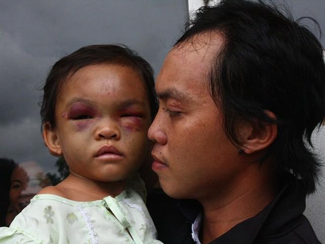 Bé 4 tuổi bị đánh: Cha ruột xuất hiện, bà ngoại giữ tiền ủng hộ - Ảnh 2
