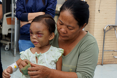 Bé 4 tuổi bị đánh: Cha ruột xuất hiện, bà ngoại giữ tiền ủng hộ - Ảnh 1