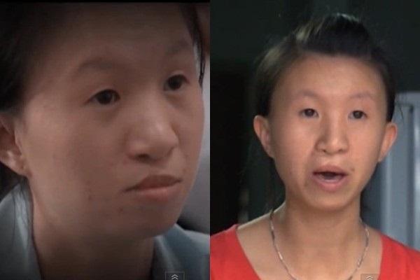 Cảm động chuyện cô gái 30kg xinh đẹp hơn nhờ phẫu thuật thẩm mỹ - Ảnh 1
