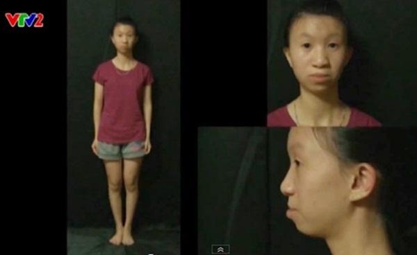 Cảm động chuyện cô gái 30kg xinh đẹp hơn nhờ phẫu thuật thẩm mỹ - Ảnh 2
