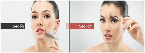 Giải pháp hoàn hảo cho người bị sẹo rỗ, sẹo lõm, lỗ chân lông thô - Ảnh 3