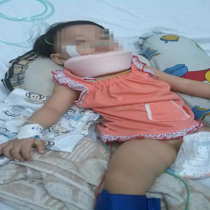 Bé 15 tháng tuổi chấn thương sọ não nghi cha hờ, mẹ ruột bạo hành - Ảnh 1