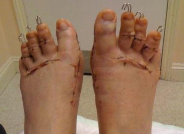 Shock: Cắt ngón chân để đi vừa giày cao gót - Ảnh 1
