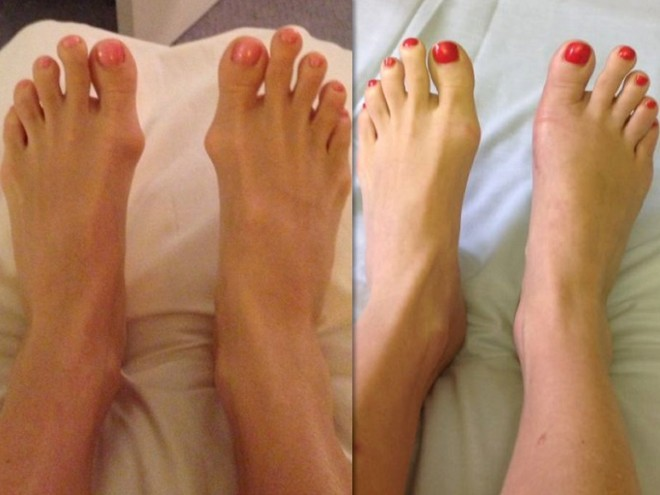 Shock: Cắt ngón chân để đi vừa giày cao gót - Ảnh 2