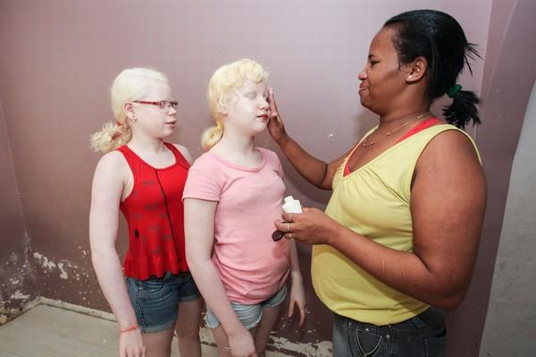 Bố mẹ da đen ở Brazil đẻ ra 3 con da trắng, tóc vàng và mắt xanh - Ảnh 2