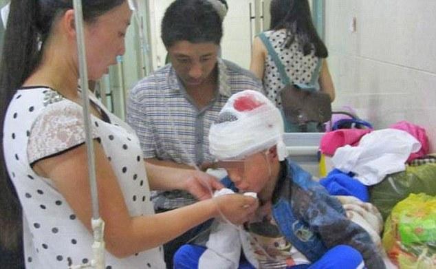 Trung Quốc: Thầy giáo đánh học sinh đến chấn thương sọ não   - Ảnh 2