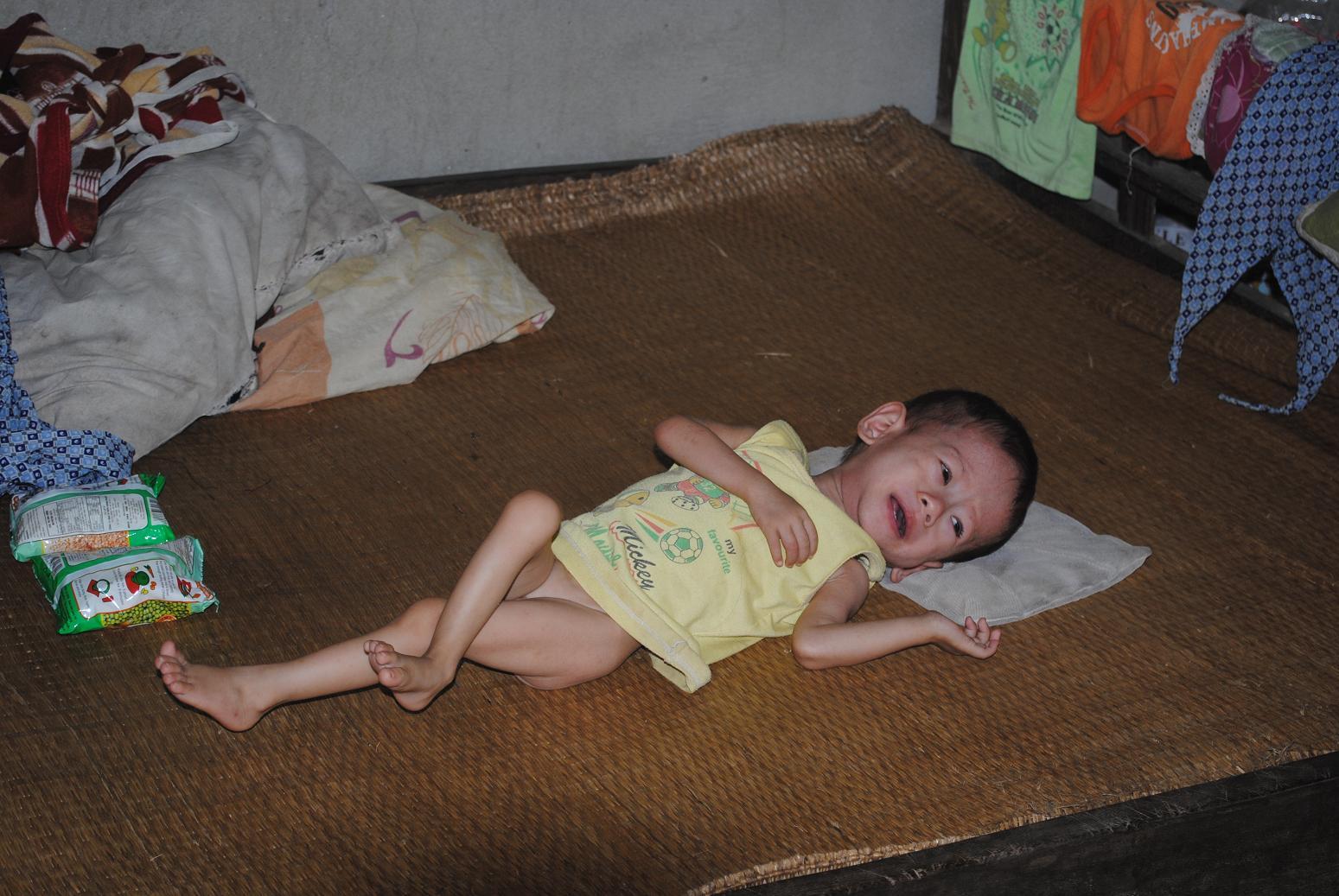 Gia cảnh khốn khó của cháu bé một tuổi bị bệnh tim bẩm sinh - Ảnh 2