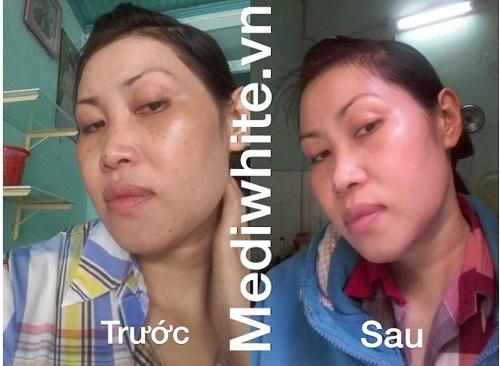 Liệu trình trị hết 80% nám da và tàn nhang trong 25 ngày  - Ảnh 2