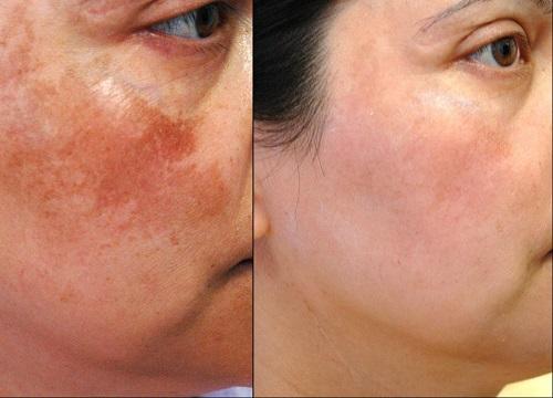 Liệu trình trị hết 80% nám da và tàn nhang trong 25 ngày  - Ảnh 3
