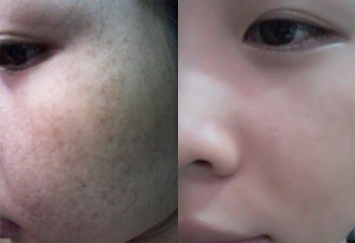 Liệu trình trị hết 80% nám da và tàn nhang trong 25 ngày  - Ảnh 4