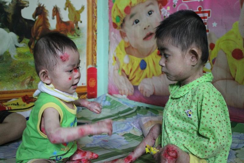 Thương xót hai cháu bé mắc chứng bệnh lạ - Ảnh 2