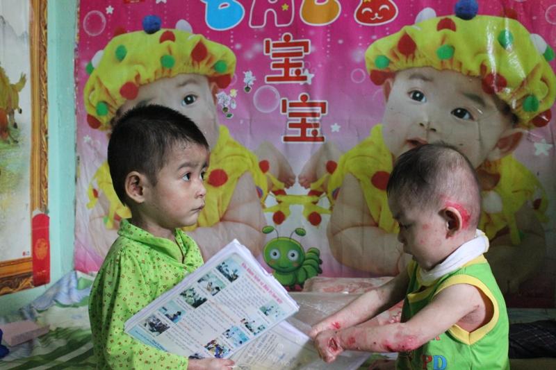 Thương xót hai cháu bé mắc chứng bệnh lạ - Ảnh 3