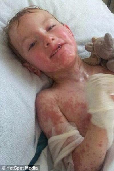 Hình ảnh đau lòng của em bé bị dị ứng thuốc - Ảnh 1