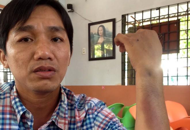 """Con trai Giám đốc CA tỉnh Cà Mau: """"Tôi bị đánh hội đồng"""" - Ảnh 1"""