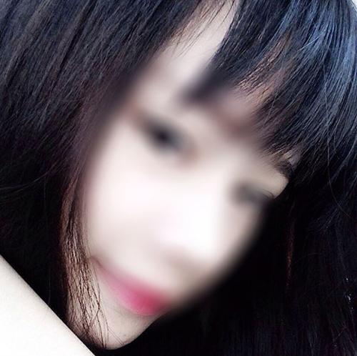 Cô gái xinh đẹp chia sẻ ảnh bị người yêu đánh thâm tím mặt - Ảnh 2