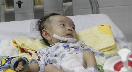 Phẫu thuật cho bé gái Sóc Trăng bị dị tật tim hiếm gặp trên thế giới - Ảnh 1