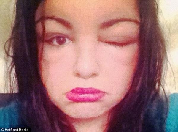 Dị ứng thuốc nhuộm tóc, cô gái trẻ phù nề khắp mặt và mù tạm thời - Ảnh 4