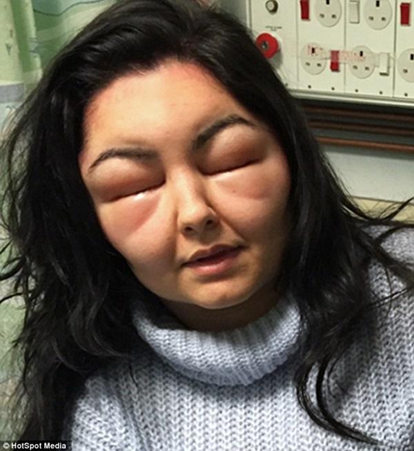 Dị ứng thuốc nhuộm tóc, cô gái trẻ phù nề khắp mặt và mù tạm thời - Ảnh 1
