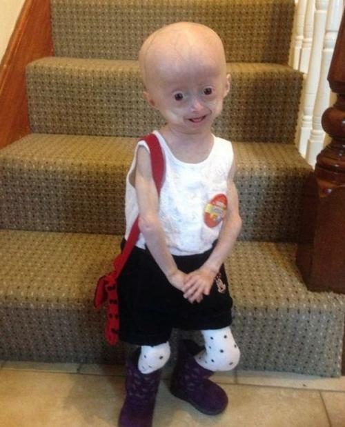 Mắc bệnh hiếm gặp, bé gái 5 tuổi hóa bà lão - Ảnh 1