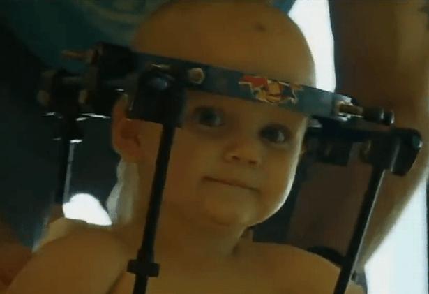Phẫu thuật thành công bé 1 tuổi bị gãy rời đầu - Ảnh 2