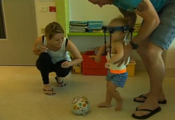 Phẫu thuật thành công bé 1 tuổi bị gãy rời đầu - Ảnh 1