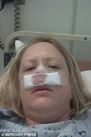 Cô gái suýt mất mũi vì bị... bọ ăn thịt người xâm nhập - Ảnh 2