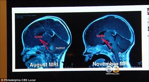 Kỳ lạ nụ hôn của Giáo hoàng làm teo khối u não của em bé - Ảnh 3