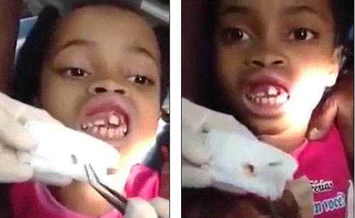 15 con giòi trong miệng bé gái khiến bác sĩ cũng hoảng hốt - Ảnh 1