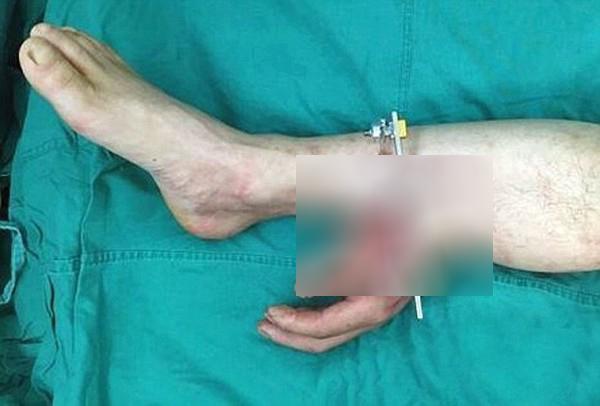 Chàng trai có bàn tay đứt rời được nối tạm vào chân - Ảnh 1