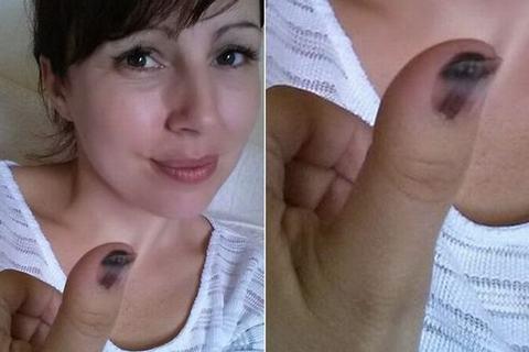 Phát hiện ung thư da ác tính qua vết bầm ở đầu ngón tay - Ảnh 1