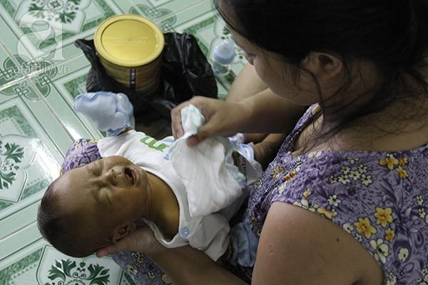Xót thương bé trai 3 tháng tuổi mang nhiều căn bệnh quái ác - Ảnh 3