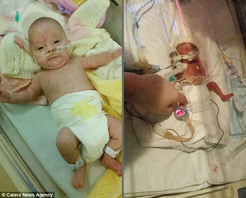 Sức sống kỳ diệu của bé sinh non nặng 0,5kg - Ảnh 3