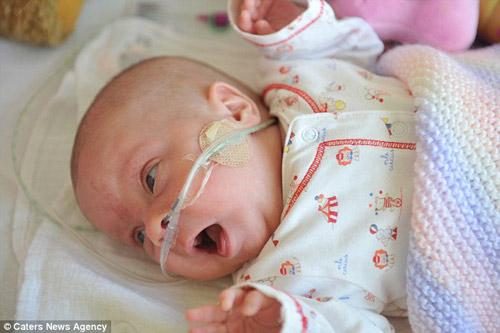 Sức sống kỳ diệu của bé sinh non nặng 0,5kg - Ảnh 5