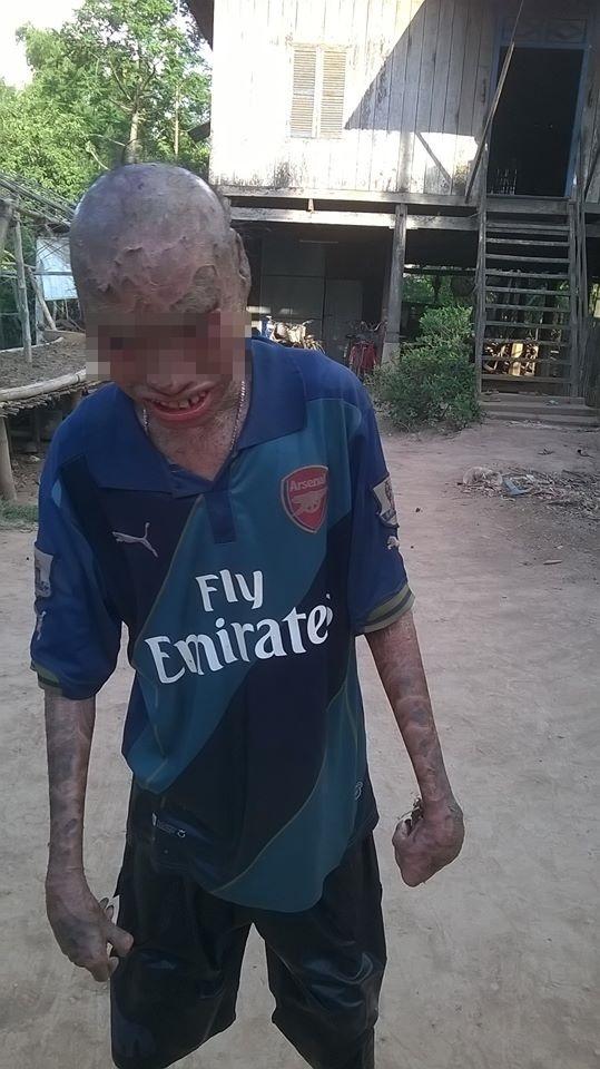 Xót thương cậu bé bị cả làng xa lánh 12 năm vì có thân hình quá xấu xí - Ảnh 4