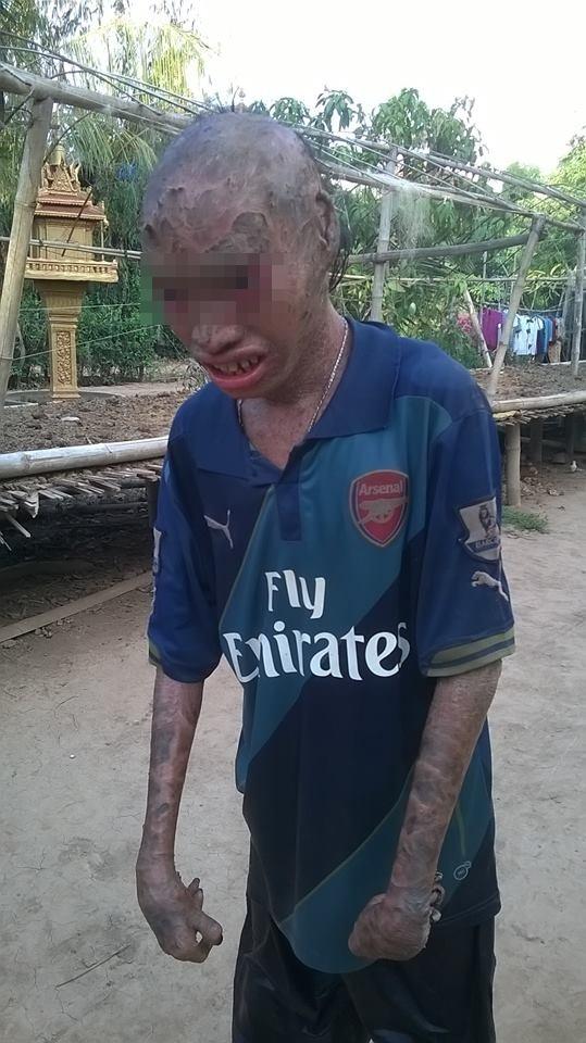 Xót thương cậu bé bị cả làng xa lánh 12 năm vì có thân hình quá xấu xí - Ảnh 2